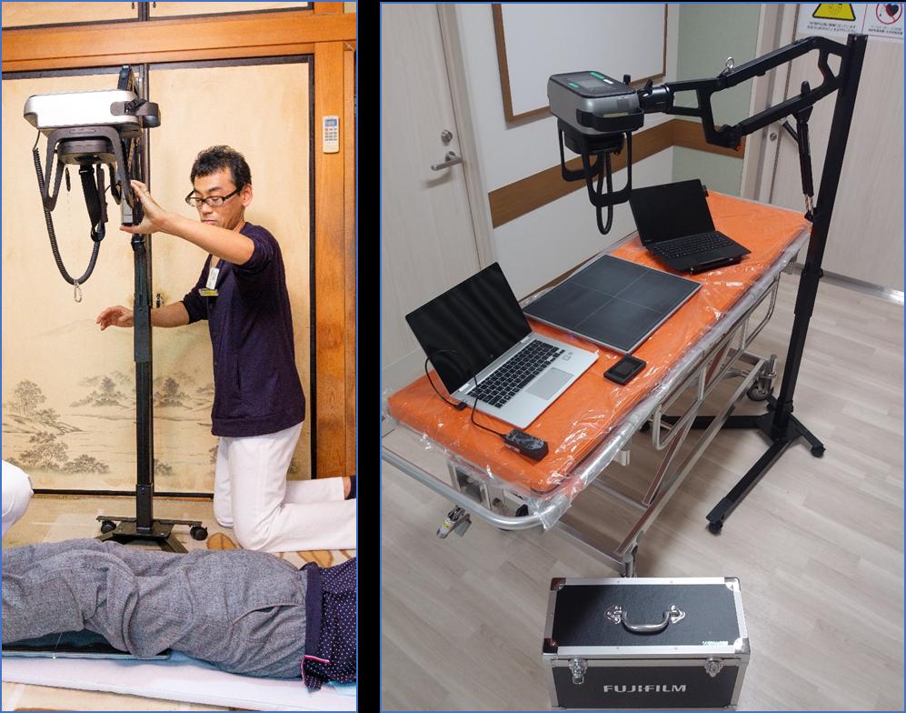 移動式小型X線撮影装置.png